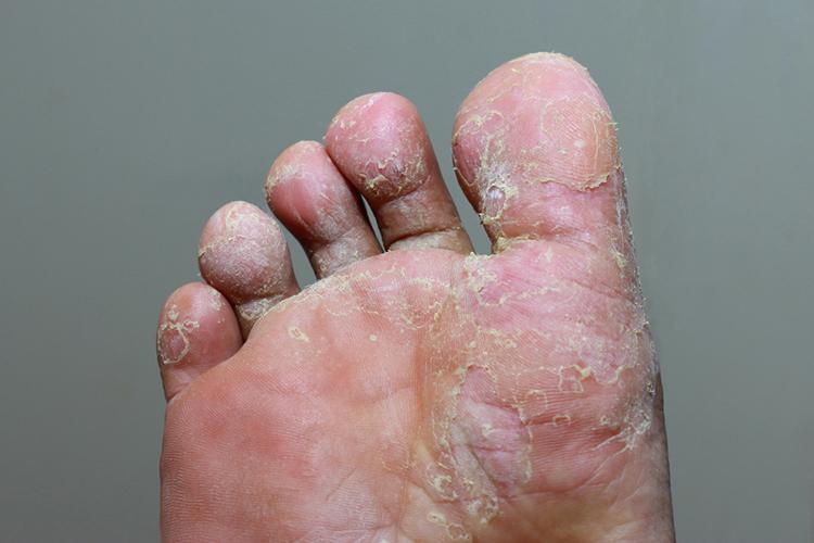 Признаки грибка на ногах - первые проявления на коже или ногтях, как распознать самому и диагностика у врача
