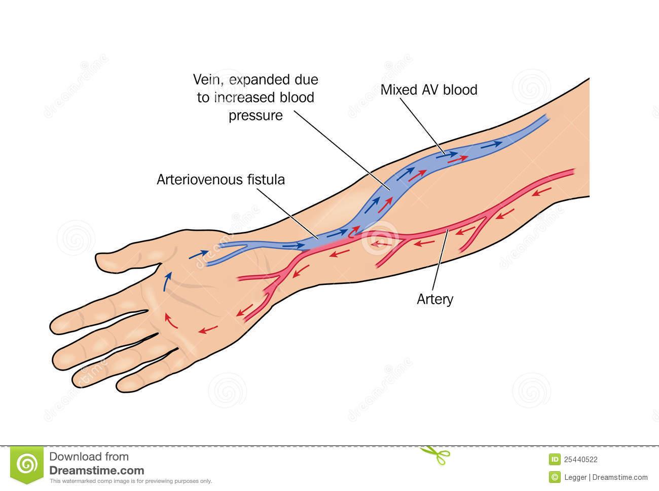 Артериовенозные свищи