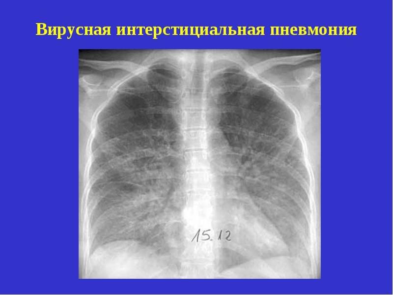 Вирусная пневмония: симптомы и лечение. вирусная пневмония: симптомы у детей