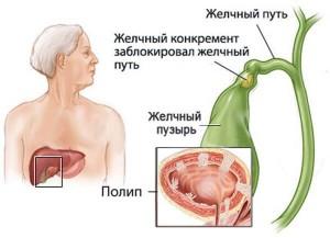 Основы питания при полипах в желчном пузыре — диета №5