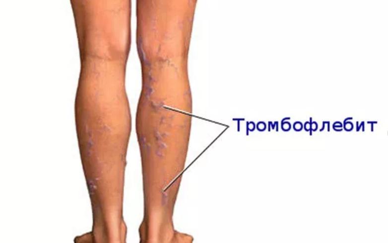 Тромбофлебит поверхностных вен: симптомы, способы лечения, рекомендации
