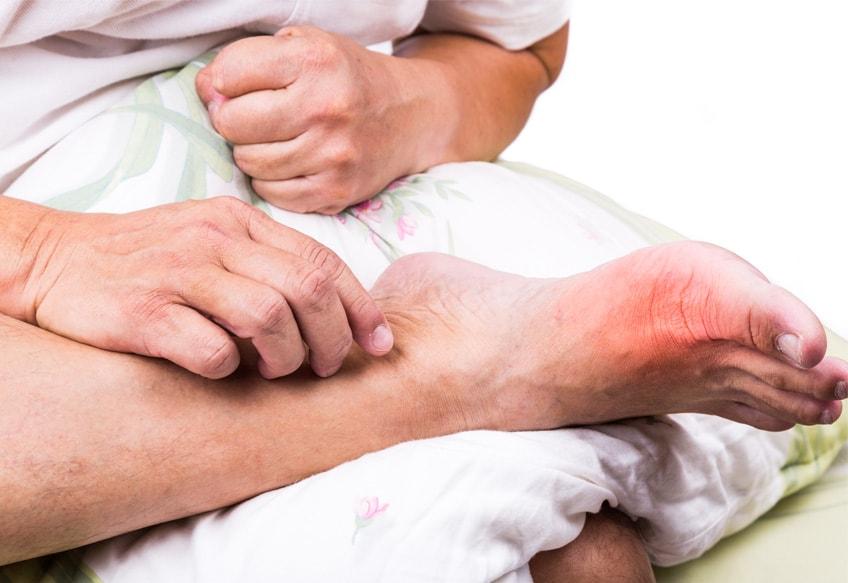 Лук при артрите ног