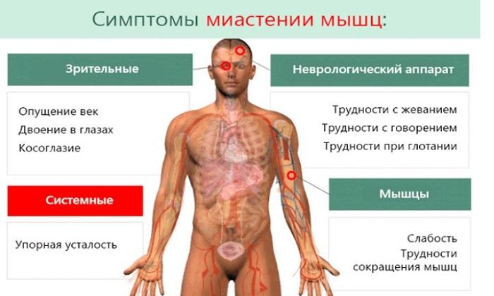 Миастения - симптомы, причины и диагностика. миастения - что это за болезнь?