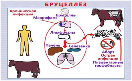 Бруцеллез - причины, симптомы, формы и диагностика