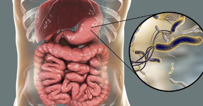 Хеликобактер пилори: диета и лечение
