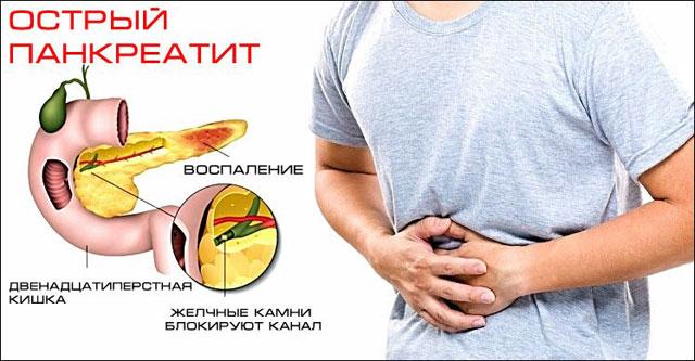 Щадящая диета для поджелудочной. питание при камнях в поджелудочной железе. пища для поджелудочной - меню на среду