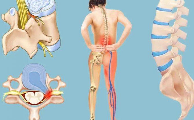 Люмбоишиалгия - что это такое: симптомы и лечение в домашних условиях