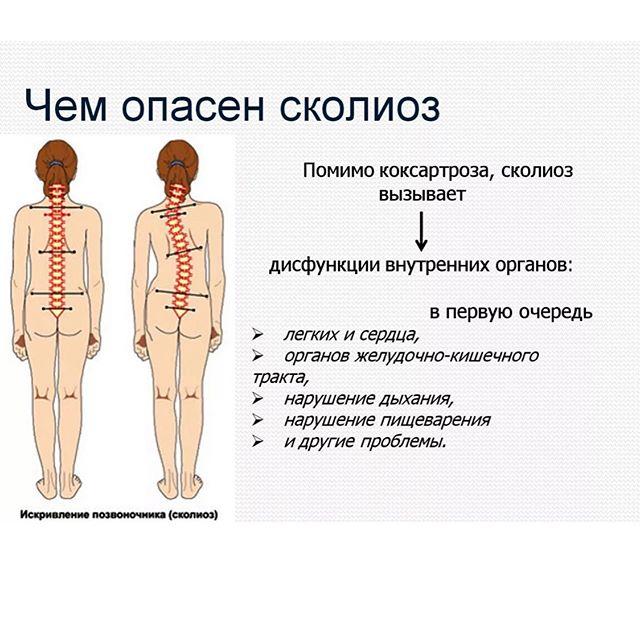 Особенности дорсопатии пояснично-крестцового отдела позвоночника