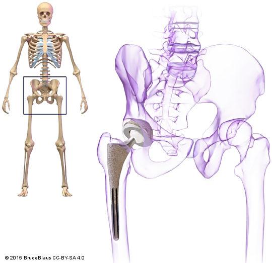 Противопоказания для эндопротезирования коленного сустава: список