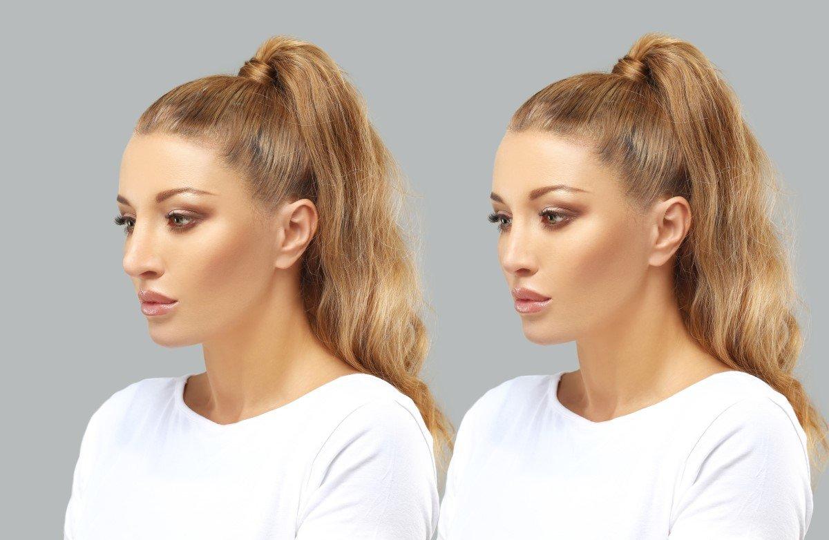 Риносептопластика - коррекция формы и функции носа