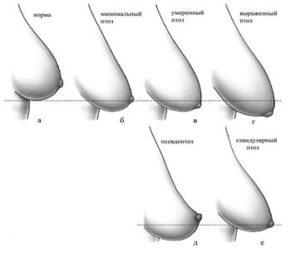 Мастопексия: виды подтяжки груди и их стоимость