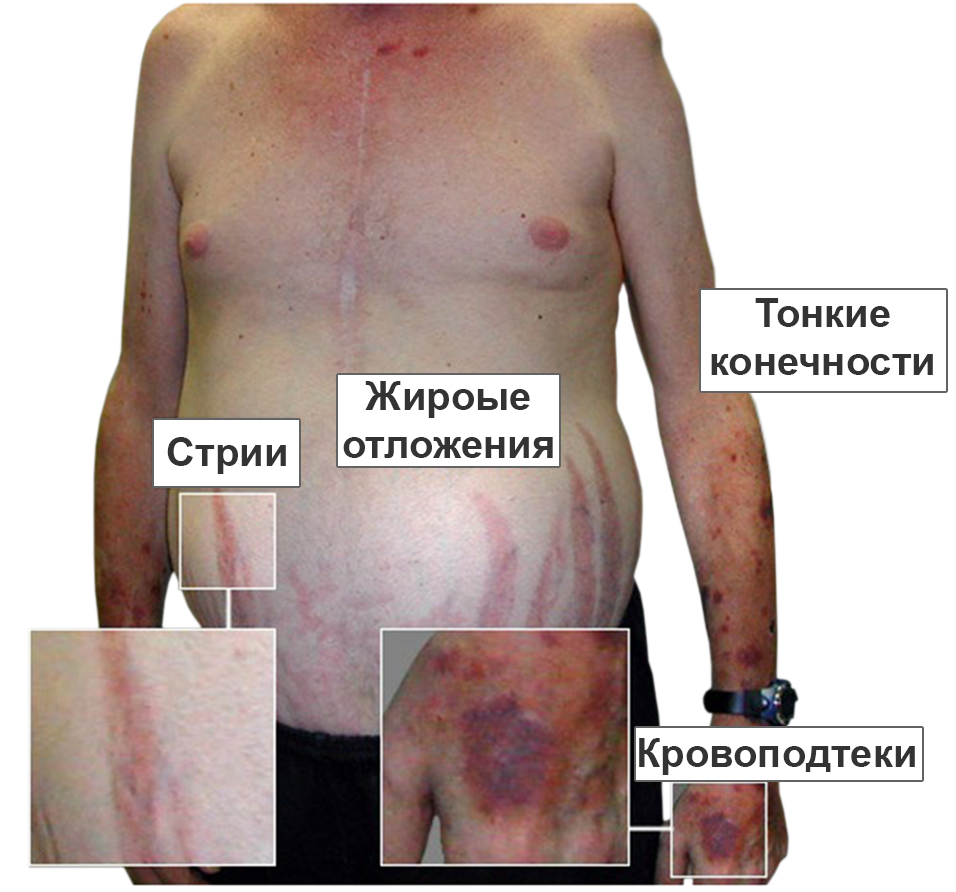 Болезнь иценко кушинга (гиперкортицизм). причины, симптомы, современная диагностика и лечение заболевания.