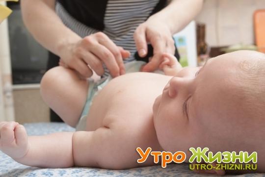 Кровит пупок у новорождённого: насколько это опасно, что это значит. что делать, если кровит пупок у новорождённого