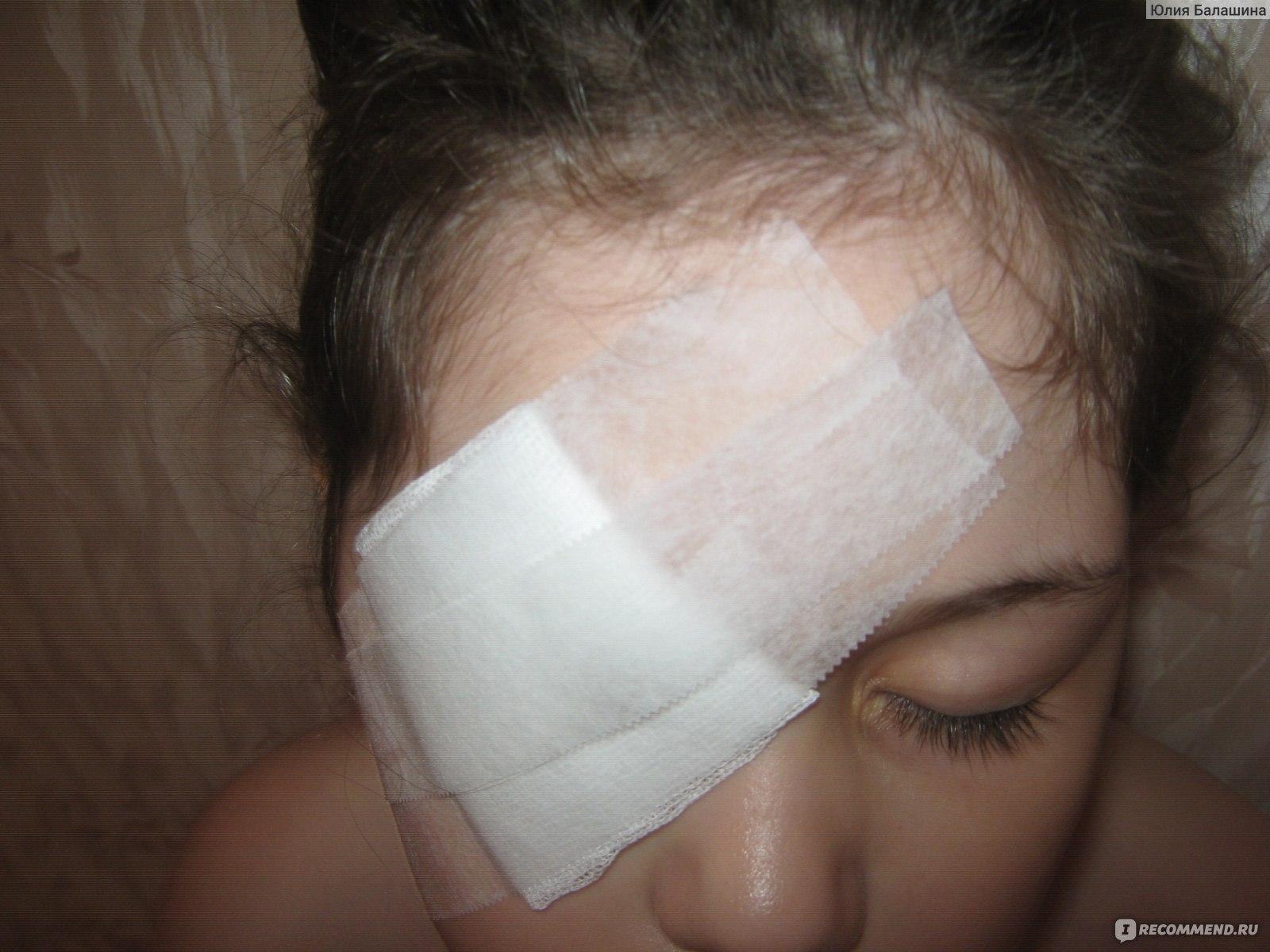 Лечение халязиона у детей – причины, как и чем лечить без операции