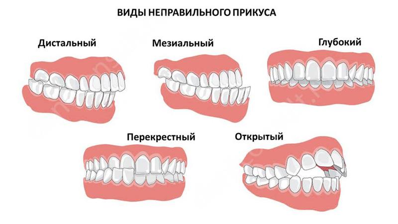 Мезиальный прикус, фото до и после исправления у взрослых, как исправляют неправильную челюсть с помощью операции и без аппарата