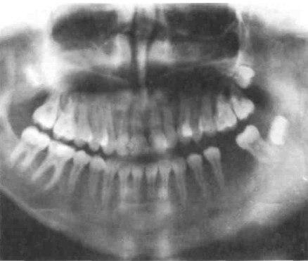 Как лечить остеомиелит верхней и нижней челюсти?