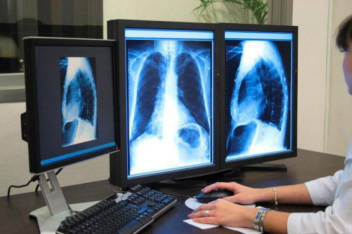 Видно ли на флюорографии бронхит или пневмонию