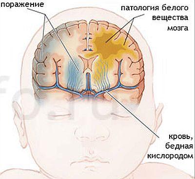 Ишемия головного мозга у новорожденного: что это, последствия и лечение, степени и особенности поражения у недоношенных детей