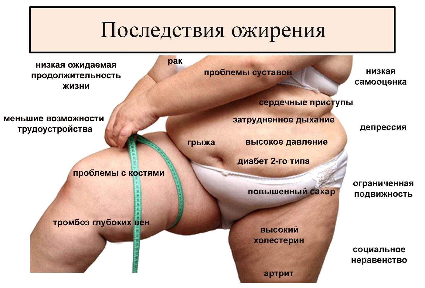 Весомая проблема: найдена связь между коронавирусом и ожирением
