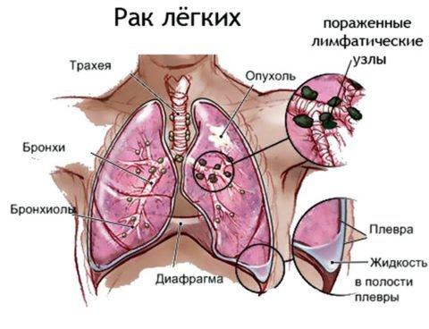 Лекарства от кашля при онкологии — ooncologiya