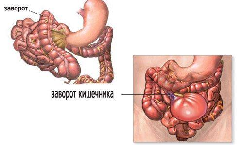 Заворот кишок - симптомы у взрослых и детей, причины и лечение | здрав-лаб