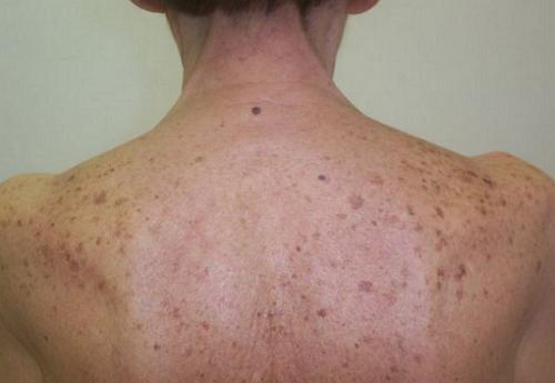 Пигментные аномалии кожи (дисхромии). пигментные аномалии кожи (дисхромии) дисхромия на лице