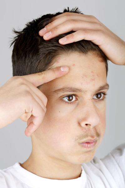Прыщи на шее— какие проблемы провоцируют и как лечить
