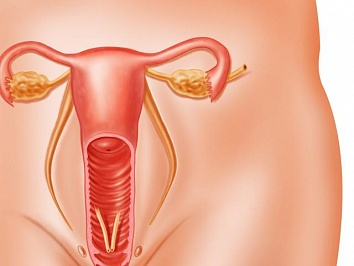 Наботовы кисты шейки матки: лечение, что это такое, народные средства, причины