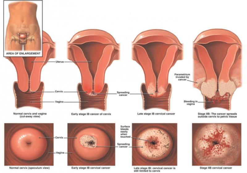 Как определить эрозию. травы и сборы для лечения эрозии шейки матки. эрозия шейки матки симптомы выделения.