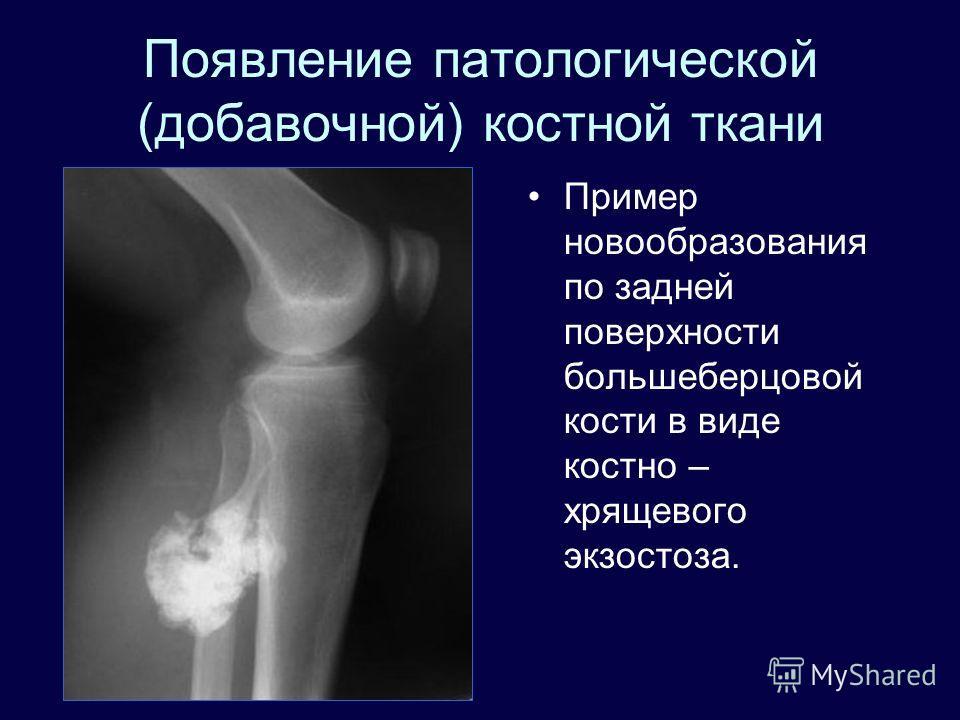 Экзостоз локтевого сустава мкб 10