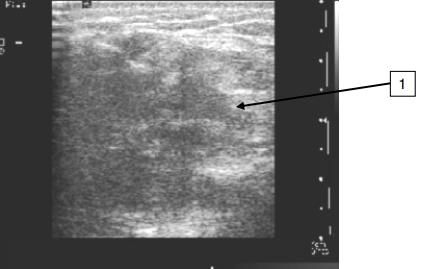 Фиброзно-жировая инволюция молочных желез. симптомы, лечение в пожилом возрасте народными средствами, что это такое