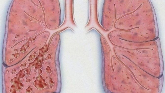 Особенности прикорневой пневмонии у детей – как своевременно заметить недуг?