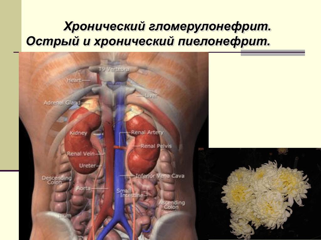 Хронический гломерулонефрит: формы и симптомы