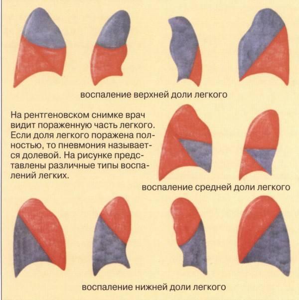 Левосторонняя пневмония: причины, симптомы, лечение