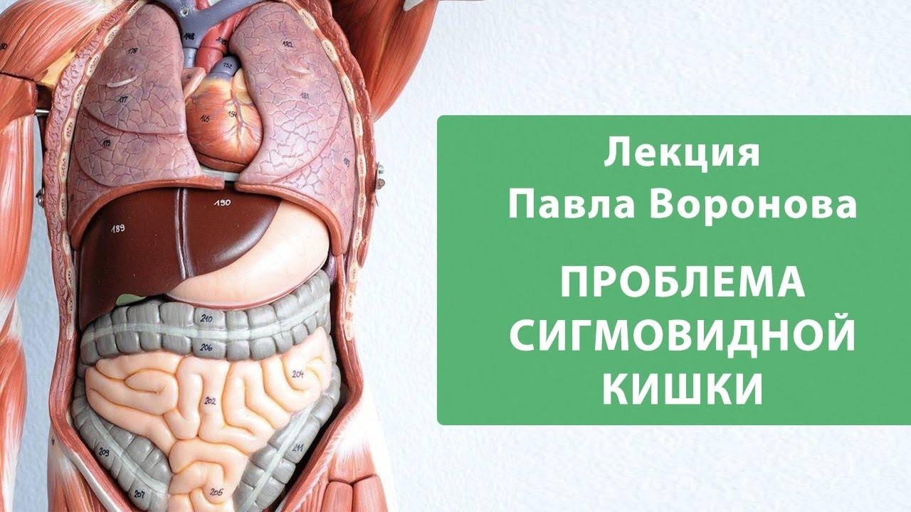 Сигмоидит: симптомы и профилактика