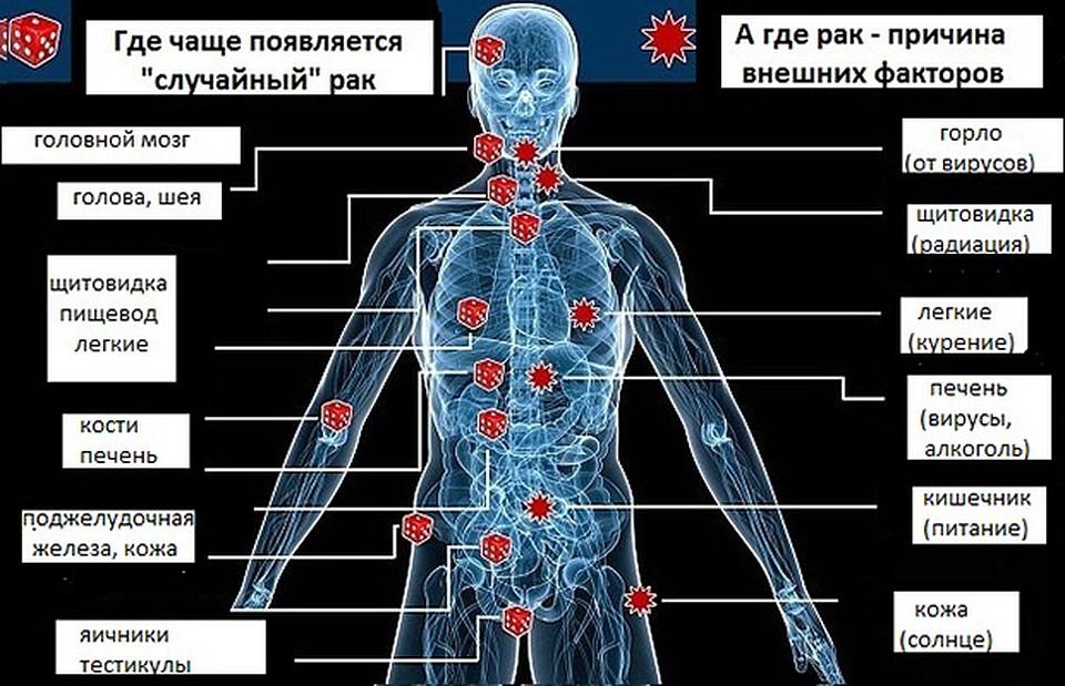 Рак языка - причины, стадии развития, хирургическое лечение, прогноз