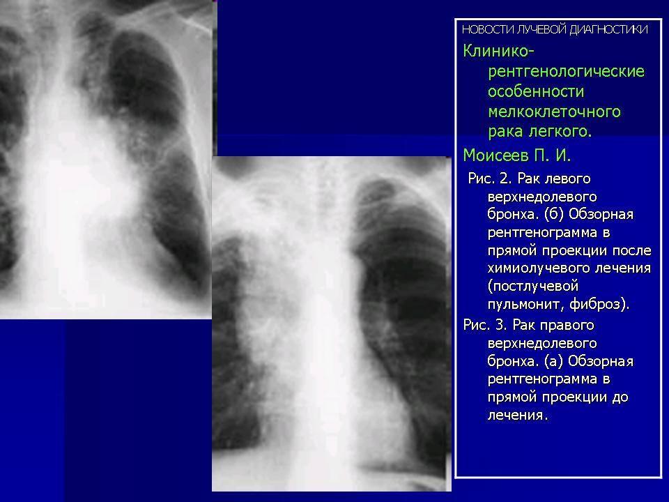 Отличие рака легких от туберкулеза легких