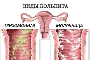 Кольпит. симптомы и лечение у женщин трихомонадный, кандидозный, сенильный, атрофический, неспецифический, хронический, грибковый. свечи, препараты