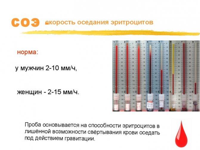 Анализ крови ребенка на соэ: причины назначения и расшифровка результатов