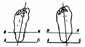 Эндонорм: инструкция, правила применения, состав и противопоказания