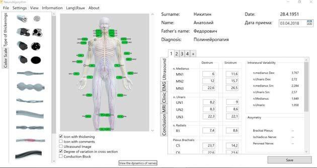 Острый полирадикулит или синдром гийена-барре