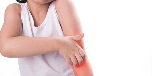 Контагиозный моллюск. причины, симптомы, диагностика и лечение патологии