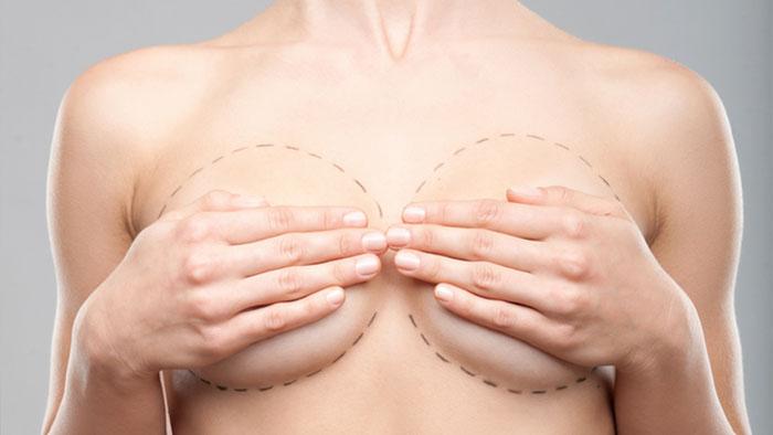 Маммопластика (пластика грудных желез): показания, методы, как проходит операция и реабилитация