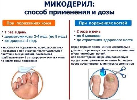 Микодерил – средство от грибка ногтей. инструкция по применению, цена, отзывы, аналоги