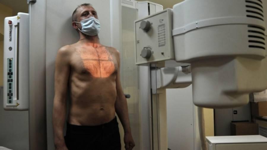 Как вылечить открытый туберкулез. открытая форма туберкулеза – подлежит лечению в стационаре