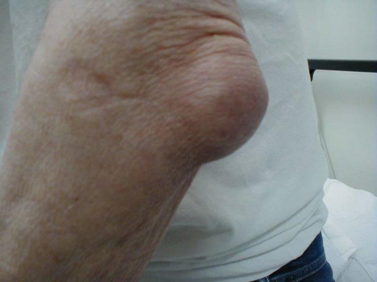 Целадрин для суставов отзывы