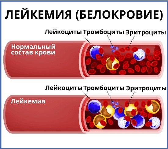 Лейкемия признаки по общему анализу крови