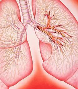 Кровохарканье, кровотечение и дгугие осложнения