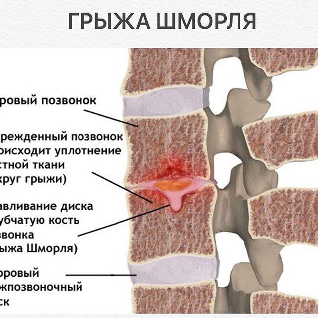 Грыжа шморля поясничного отдела позвоночника