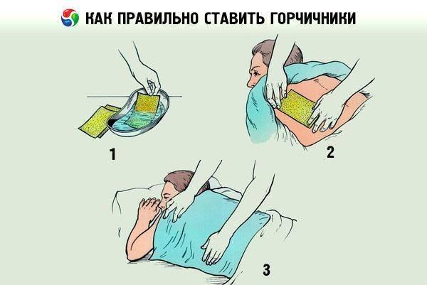 Как ставить горчичники при бронхите правильно